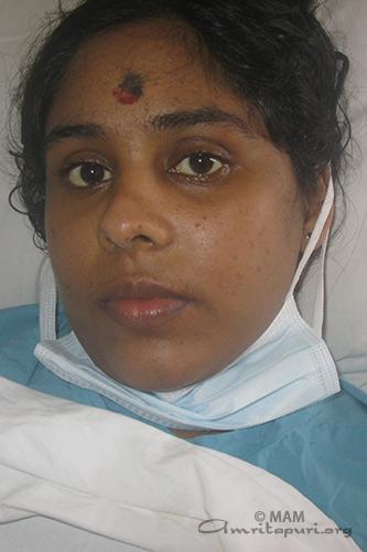 Siju,  Amrita Hospitals' Liver transplant  patient