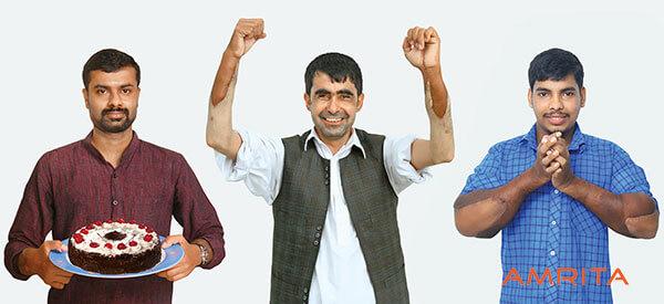 3 получателя трансплантатов: Ману, Абдул Рахим и Джит