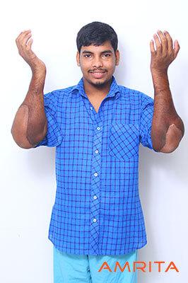 Джит Кумар Саджи, которому трансплантировали руки